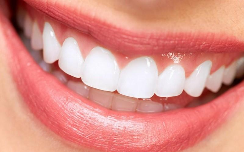 estetica dental