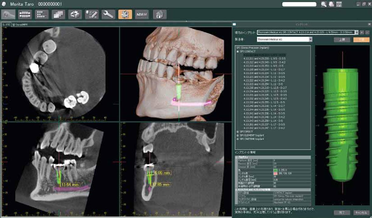 radiología 3 d